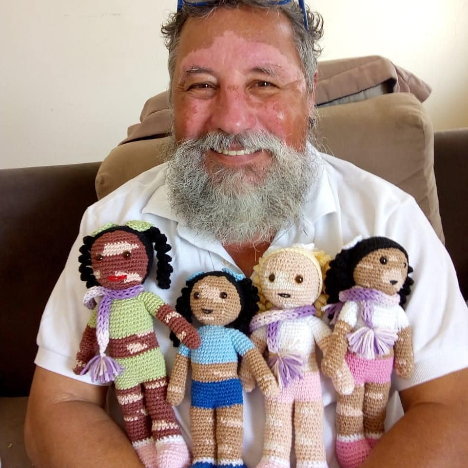 Grandfather with Vitiligo Crochets Dolls for Kids with the Condition: They 'Feel Represented'