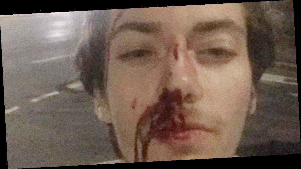 Teenager scared to go out after being left bloodied in vicious mugging
