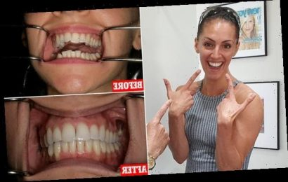Woman transforms her crooked smile in six months using Invisalign