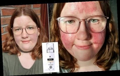 Rosacea sufferer claims £19 concealer made with CAPERS improved skin