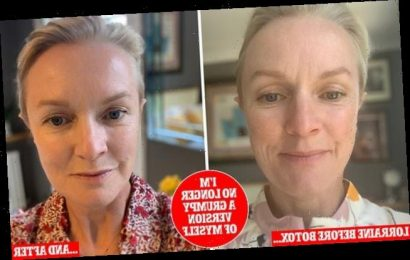 Can you have Botox and still be feminist? Lorraine Candy says yes