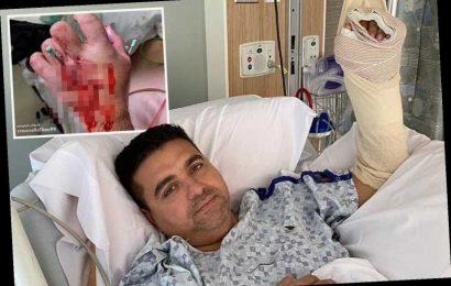 Buddy Valastro: Road To Recovery shows baker's gruesome recovery after impaling his hand in a freak bowling accident