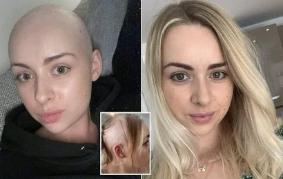Bride-to-be traumatised after hair fell out in six weeks from alopecia