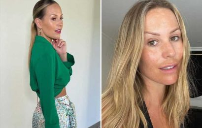 'Insecure' Kate Ferdinand reveals skin pigmentation as she goes make-up free for first time in candid snap